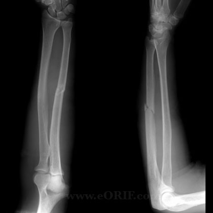 Radius and Ulnar Shaft Fractures - Trauma - Orthobullets