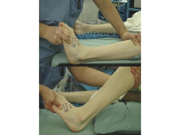 Diabetic Foot Ulcers Foot Ankle Orthobullets