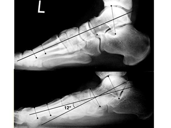 Flexible Pes Planovalgus (Flexible Flatfoot) - Pediatrics