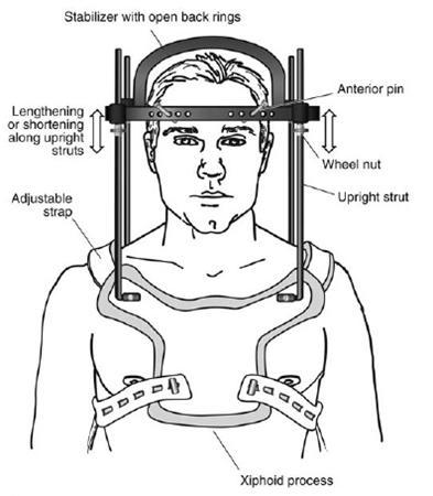 Halo Orthosis Immobilization - Spine - Orthobullets.com