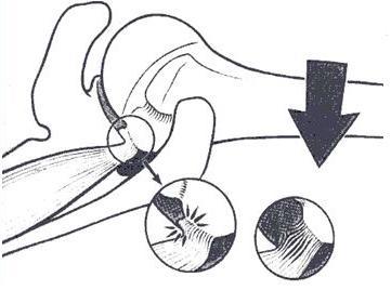 Posterosuperior Rotator Cuff
