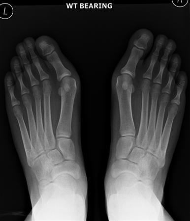 Hallux Valgus - Foot & Ankle - Orthobullets