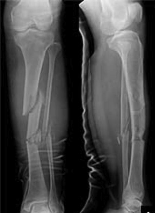 Tibial Shaft Fractures - Trauma - Orthobullets