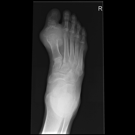 Gout Basic Science Orthobullets