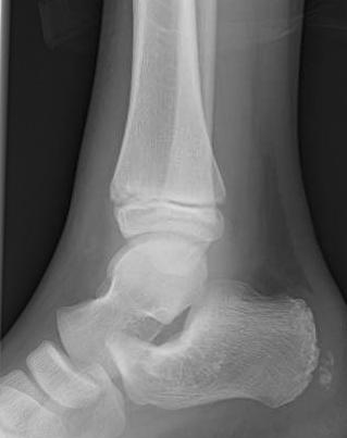 Osteomyelitis - Pediatric - Pediatrics - Orthobullets