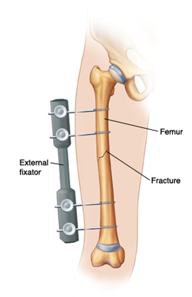Femoral Shaft Fractures - Pediatric - Pediatrics - Orthobullets