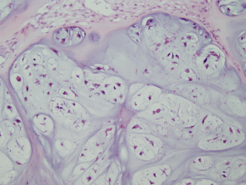 Chondrosarcoma - Pathology - Orthobullets