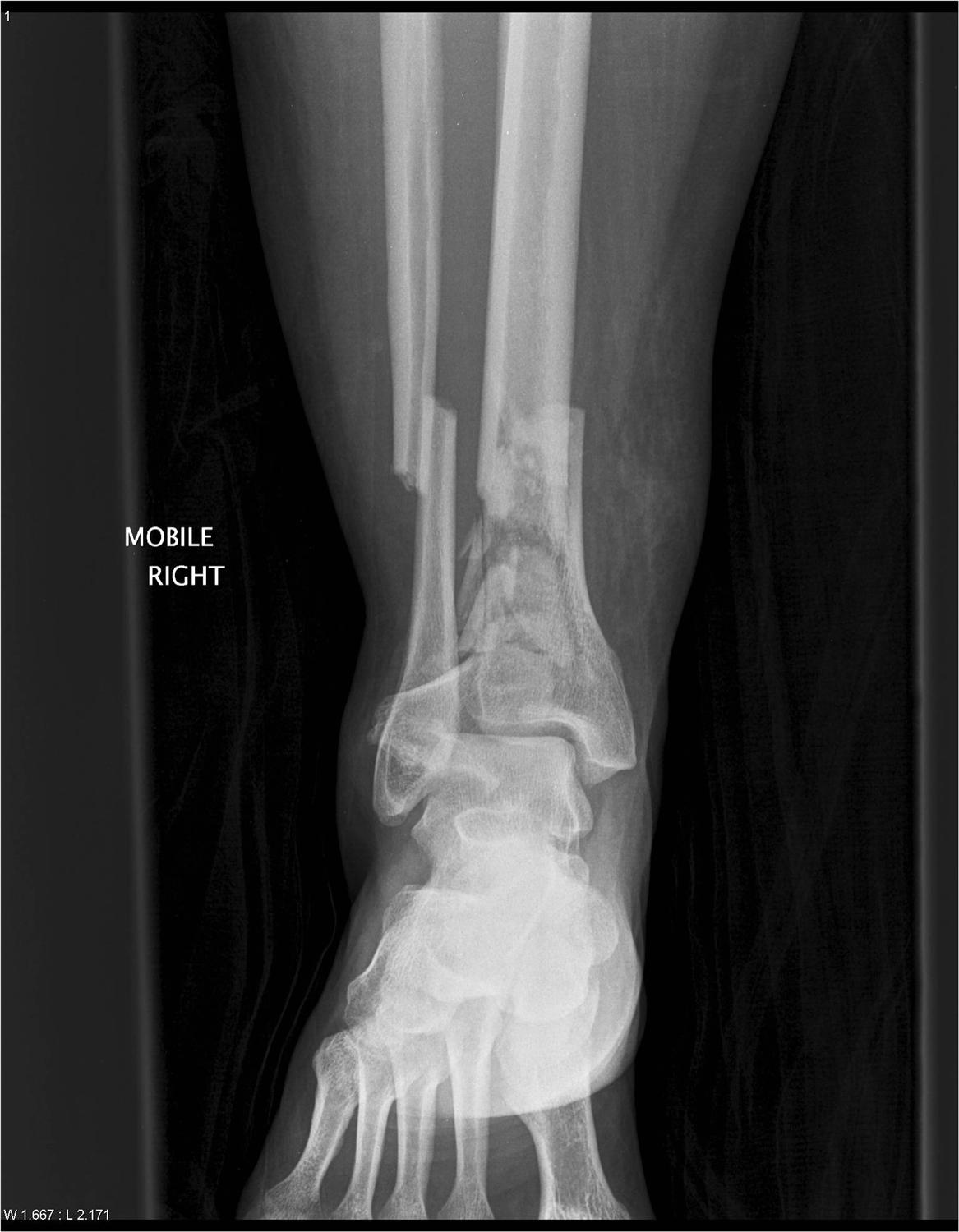Tibial Plafond Fractures - Trauma - Orthobullets