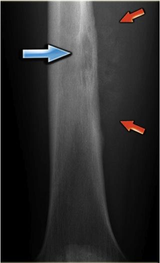 Ewing's Sarcoma - Pathology - Orthobullets