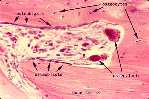 Image result for Osteoblasts