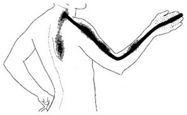 Cervical Radiculopathy - Spine - Orthobullets