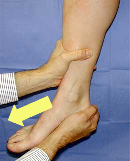 Ankle Sprain - Foot & Ankle - Orthobullets