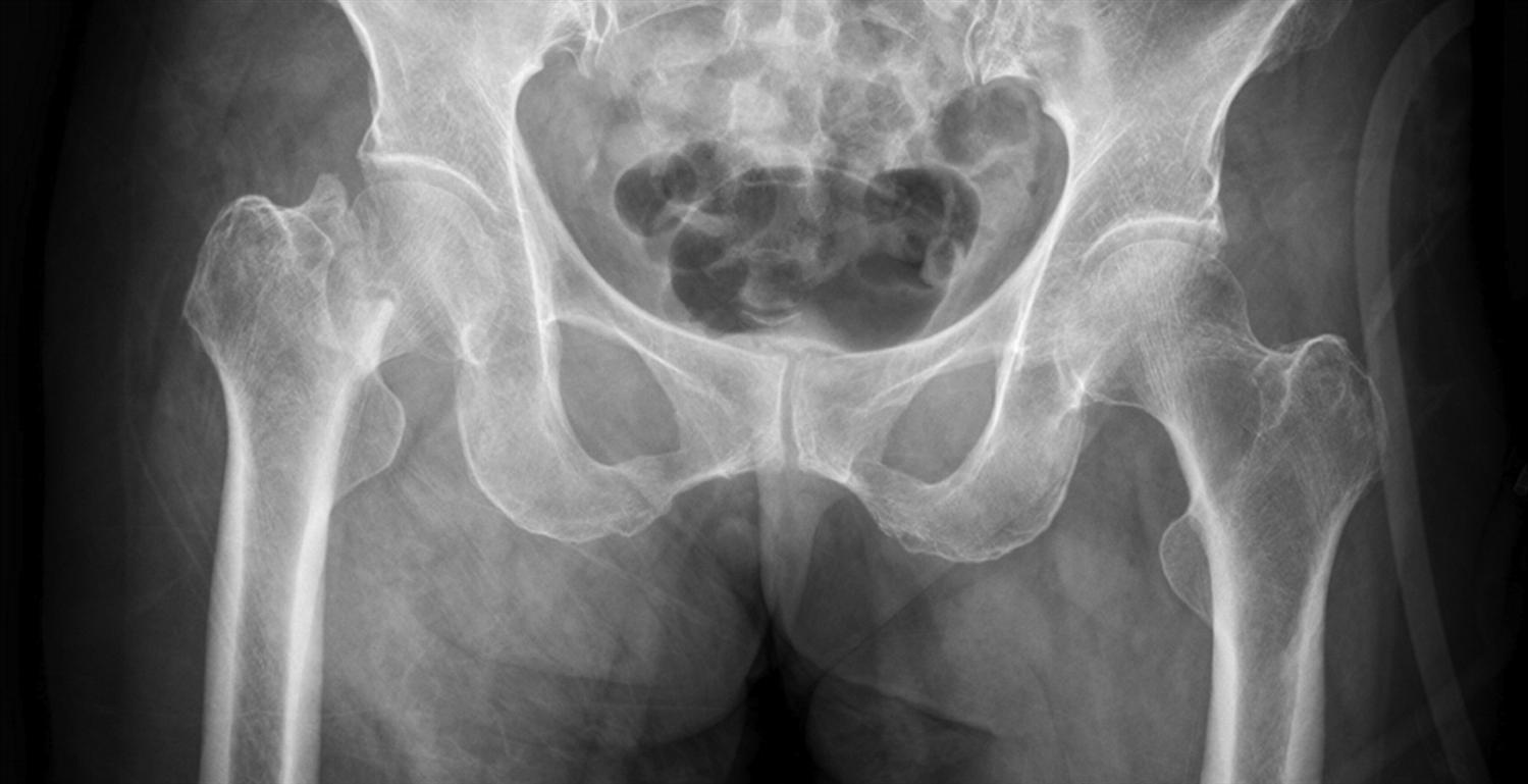 Femoral Neck Fractures - Trauma - Orthobullets
