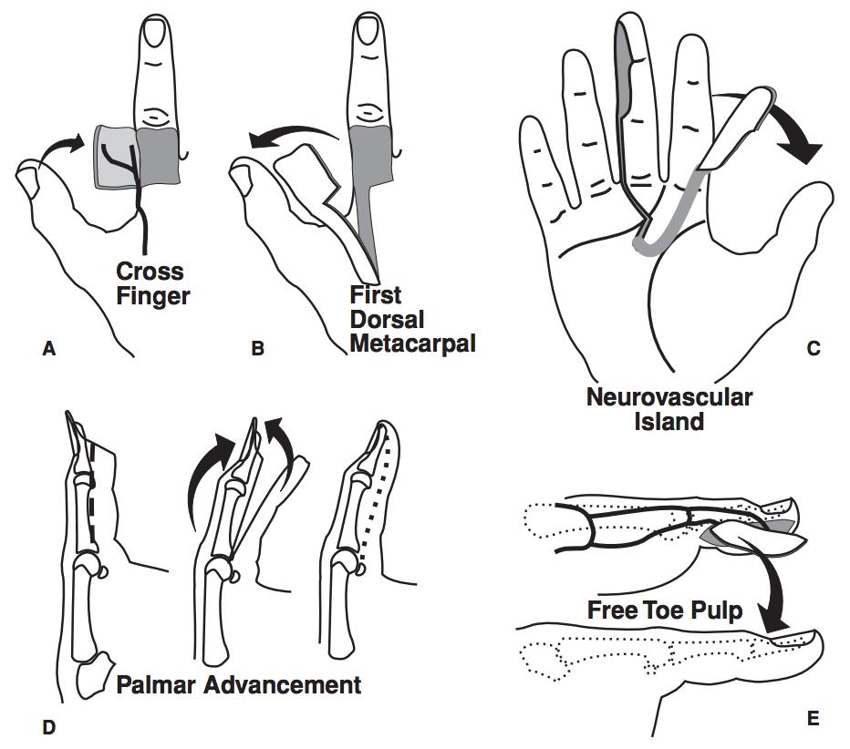 extremity flap reconstruction - hand
