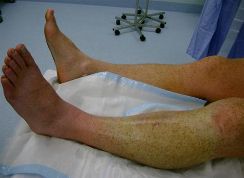 Leg Compartment Syndrome - Trauma - Orthobullets