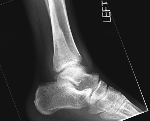 Ankle Fractures - Trauma - Orthobullets