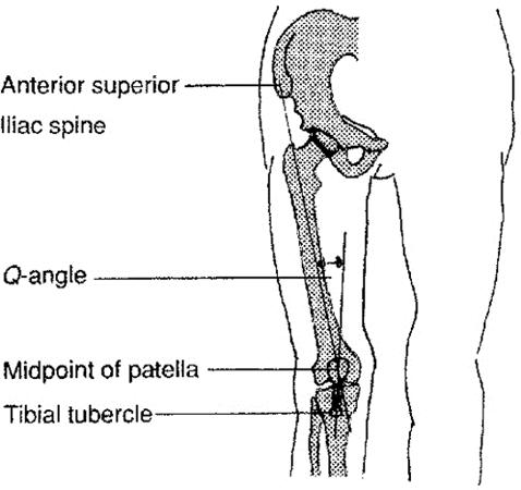 Q Angle  Physiopedia