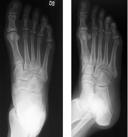 Plantar Fasciitis - Foot & Ankle - Orthobullets