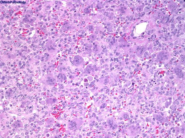 Giant Cell Tumor - Pathology - Orthobullets
