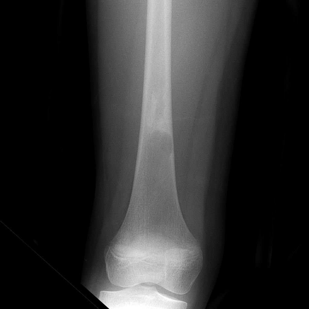 Fibrous Dysplasia Pathology Orthobullets