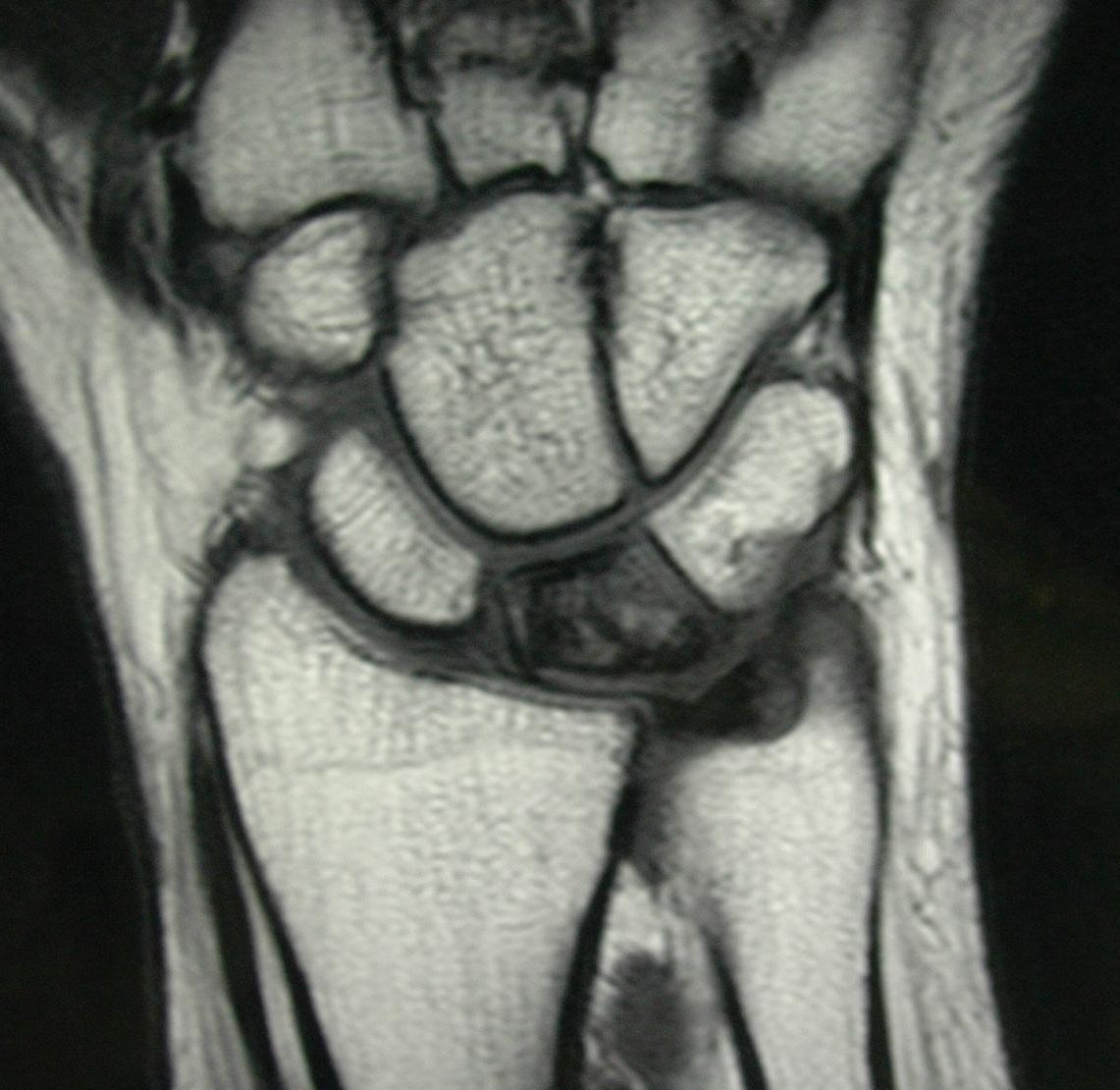 Kienbock\'s Disease - Hand - Orthobullets