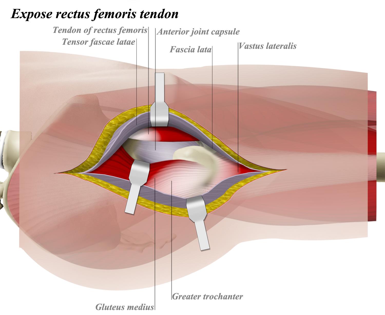Vastus lateralis - Anatomy - Orthobullets