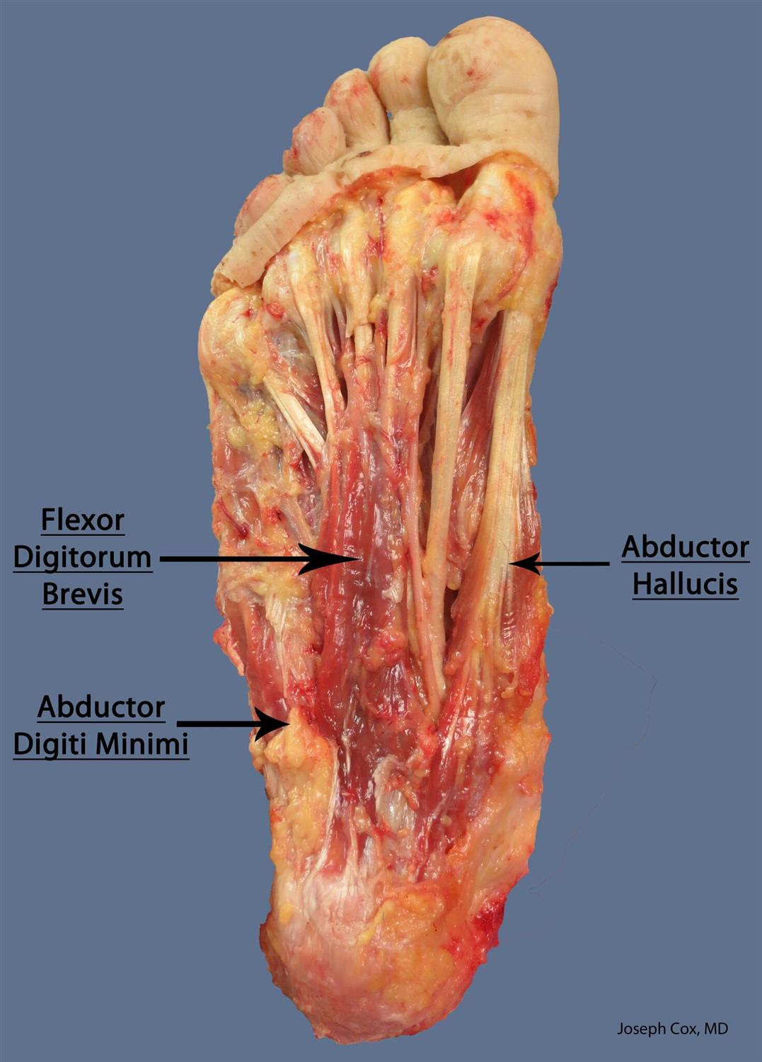 Flexor digitorum brevis (MPN) - Anatomy - Orthobullets