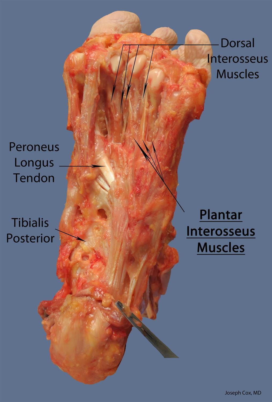 Plantar Interossei Lpn Anatomy Orthobullets