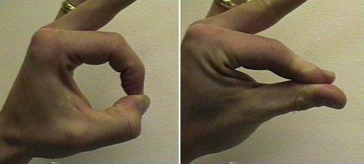https://upload.orthobullets.com/topic/10107/images/anterior_interosseous_lesion1345527186191.jpg