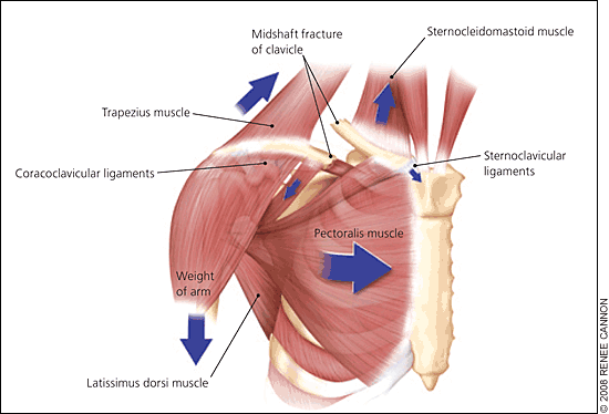 arm weight (aafp.org) clavicle shaft fractures trauma orthobullets