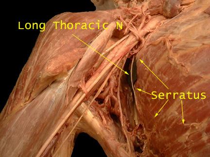 Long Thoracic Nerve - Anatomy - Orthobullets