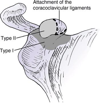 https://upload.orthobullets.com/topic/1013/images/scapula fx - coracoid classification.jpg