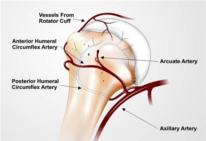 Proximal Humerus Fractures Trauma Orthobullets