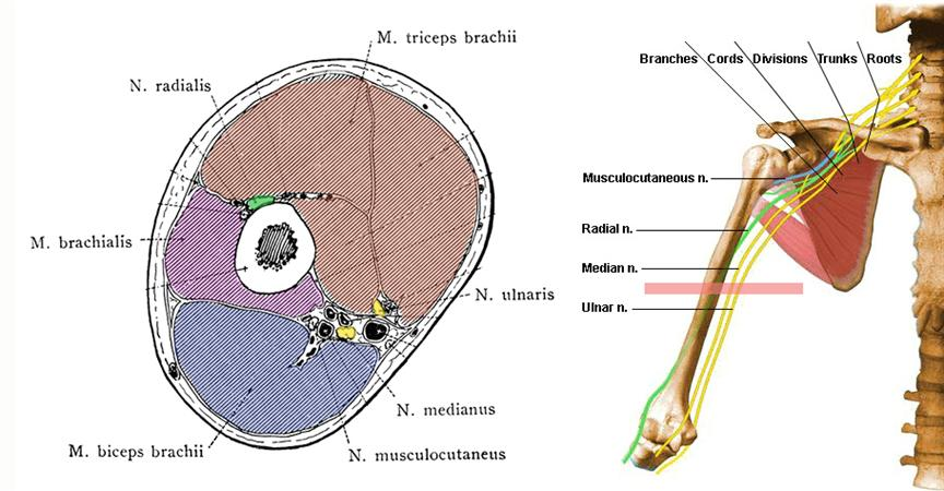 Humeral Shaft Fractures - Trauma - Orthobullets