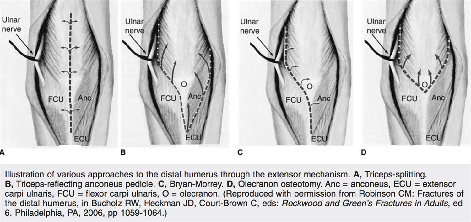 Distal Humerus Fractures - Trauma - Orthobullets