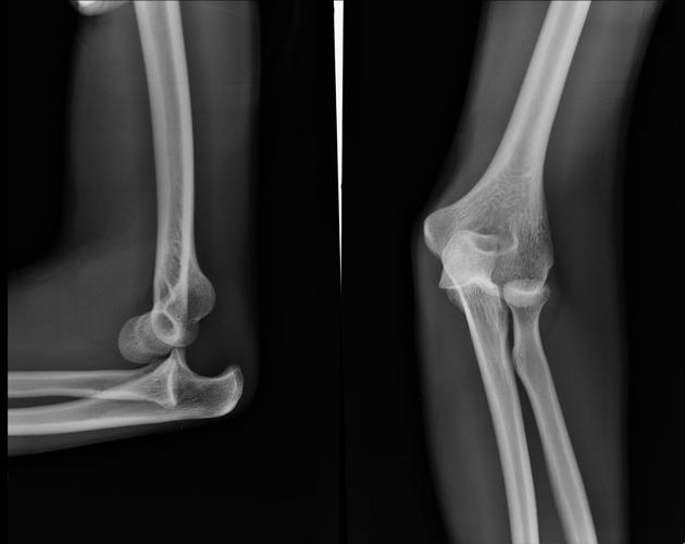 https://upload.orthobullets.com/topic/1018/images/posteriorelbowdislocation.jpg
