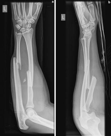 Image result for Forearm Fractures
