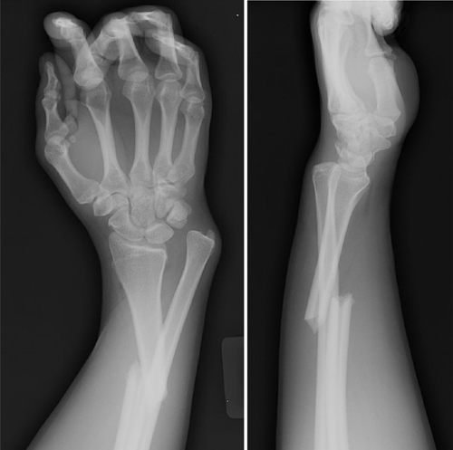 Galeazzi Fractures - Trauma - Orthobullets