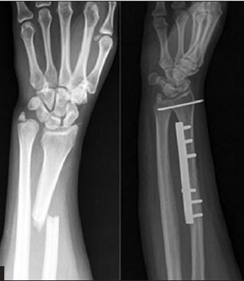 https://upload.orthobullets.com/topic/1029/images/galeazzi fracture orif.jpg