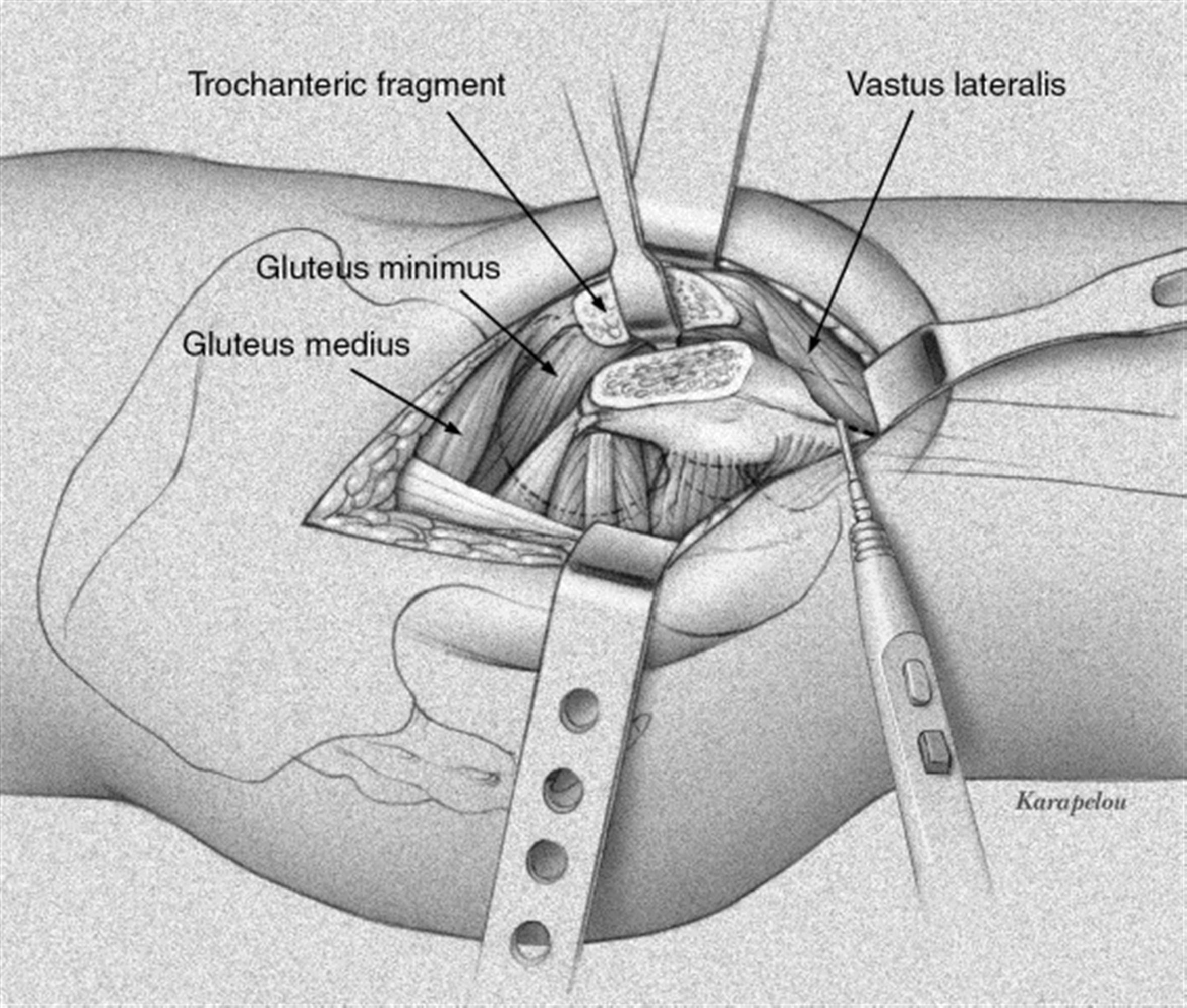 provides the best visualization of femoral head fracture and acetabular  posterior wall fracture