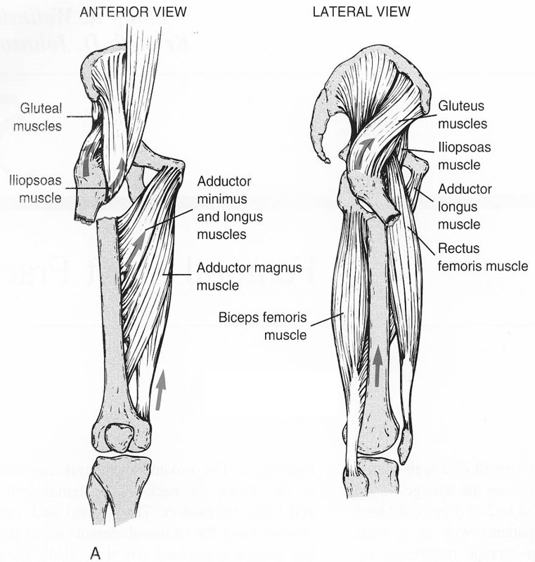Femoral Shaft Fractures - Trauma - Orthobullets