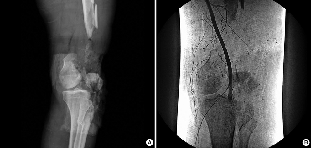 Distal Femur Fractures - Trauma - Orthobullets