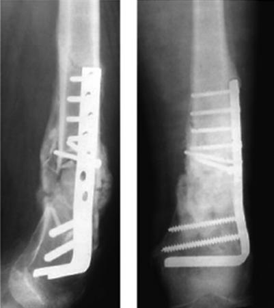 https://upload.orthobullets.com/topic/1041/images/radiographs blade plate.jpg