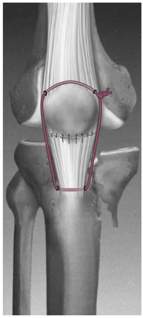 Patella Fracture - Trauma - Orthobullets
