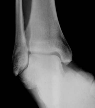 https://upload.orthobullets.com/topic/1050/images/Xray - AP - Medial subtalar dislocation (e-rediography)_moved.jpg