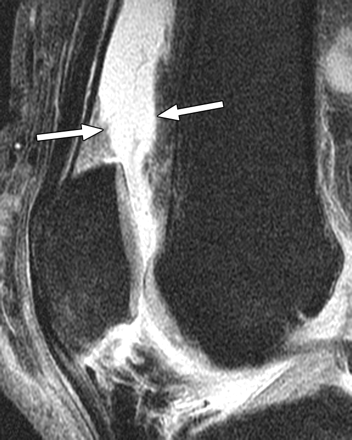 https://upload.orthobullets.com/topic/1058/images/lateral mri (ajronline.org).jpg