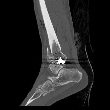 Gun Shot Wounds - Trauma - Orthobullets