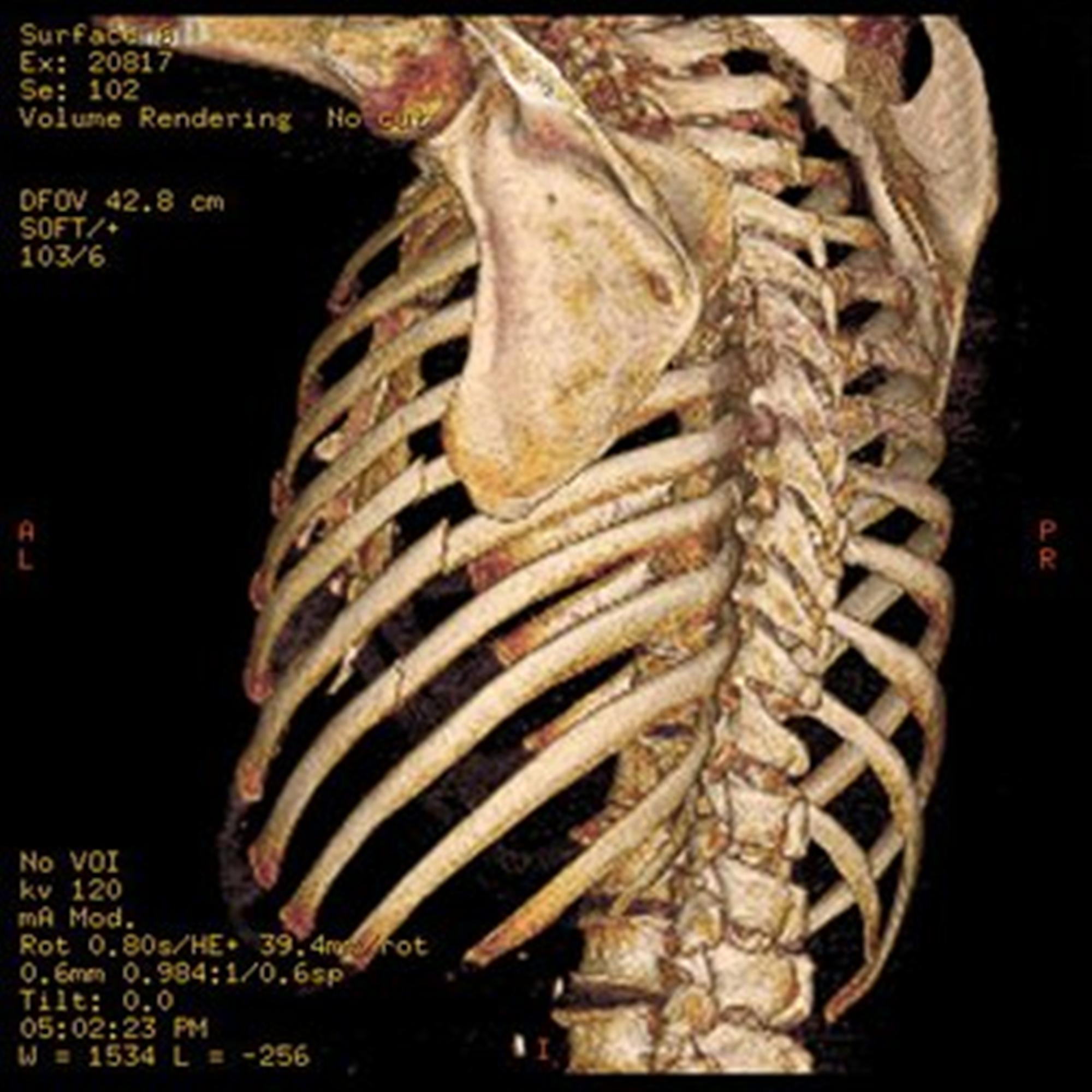 https://upload.orthobullets.com/topic/1060/images/3-d-reconstruction-of-fractured-ribs-before-surgery_1.jpg