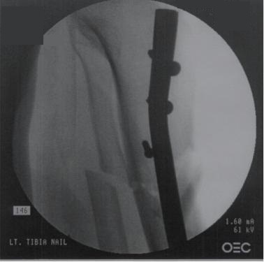 https://upload.orthobullets.com/topic/1062/images/proximal_third_tibia_fx_-_surgical_technique_-_im_nail_-_coronal_blocking_screw.jpg