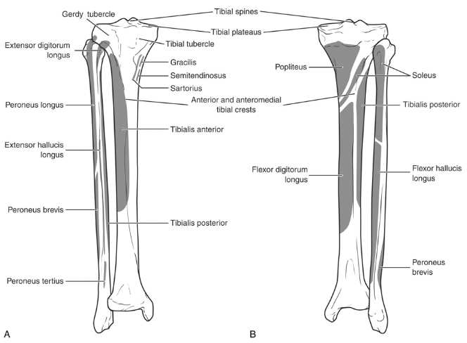 Proximal Third Tibia Fracture - Trauma - Orthobullets